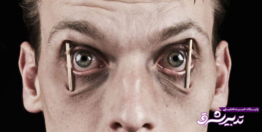 تصویر از بیخوابی طولانی و اثرات آن بر بدن انسان!