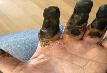 تصویر از کرونا باعث قطع انگشتان یک مرد شد!